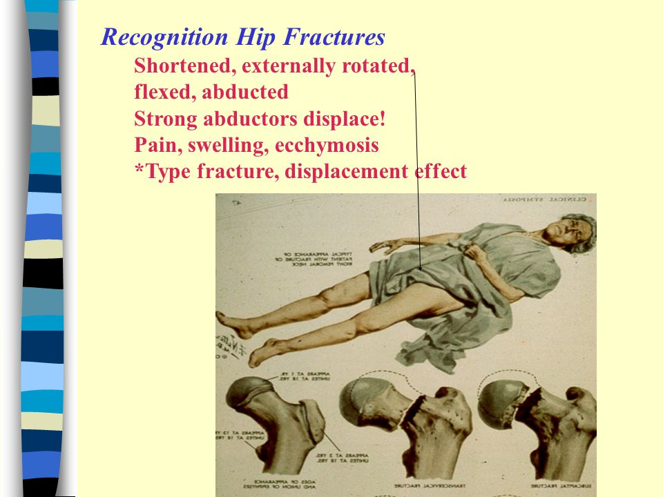 Recognition Hip Fractures