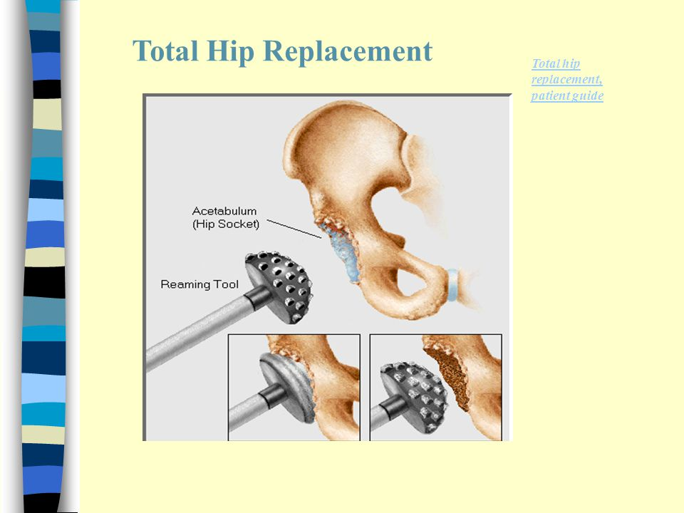 care of hip prothesis Hip and ankle disarticulation  limb and prosthesis care currently selected recovery faq  even with good preventative care, your prosthesis can break.