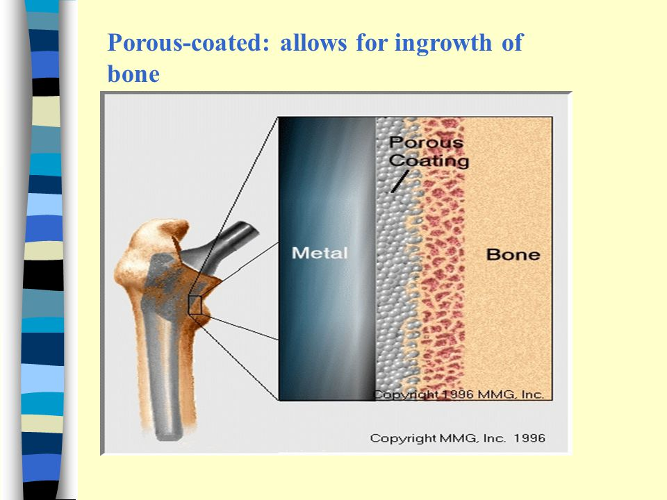 Porous-coated: allows for ingrowth of bone