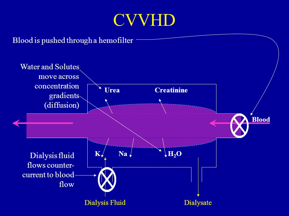 CVVHD Blood is pushed through a hemofilter