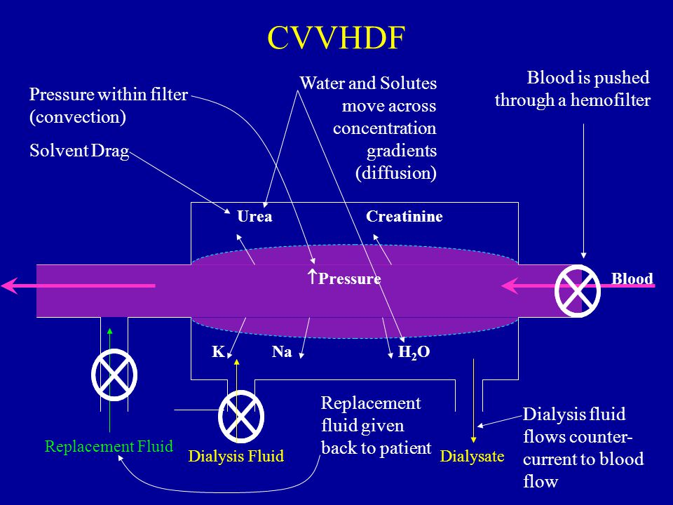 CVVHDF Blood is pushed through a hemofilter