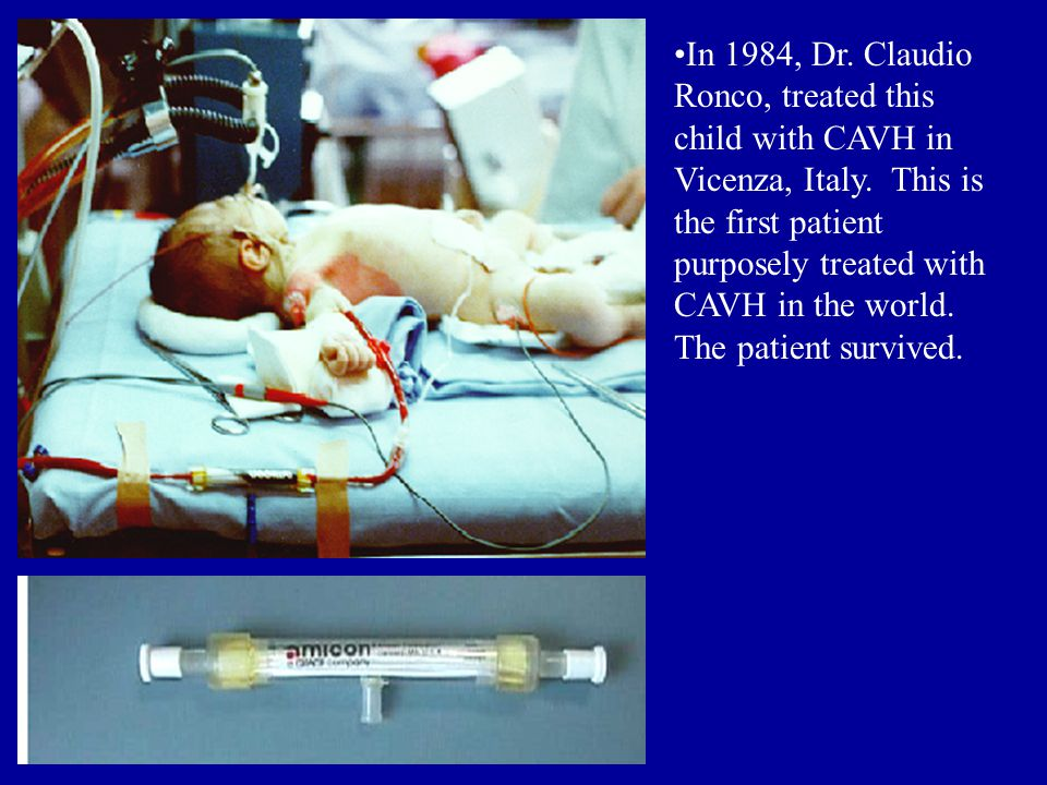 In 1984, Dr. Claudio Ronco, treated this child with CAVH in Vicenza, Italy.