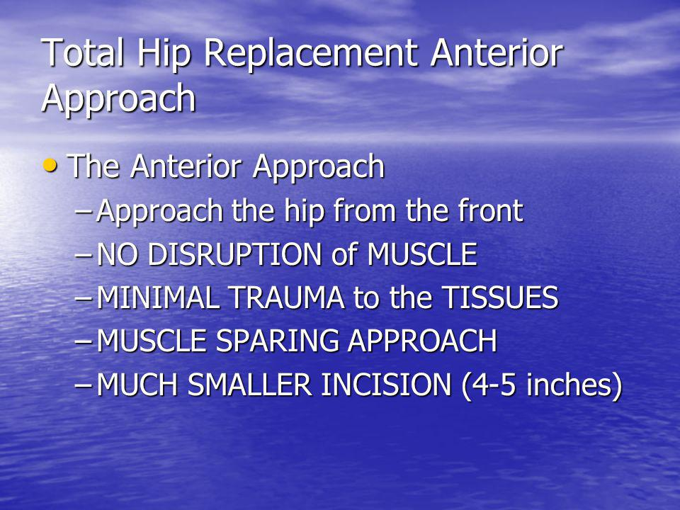 Total Hip Replacement Anterior Approach