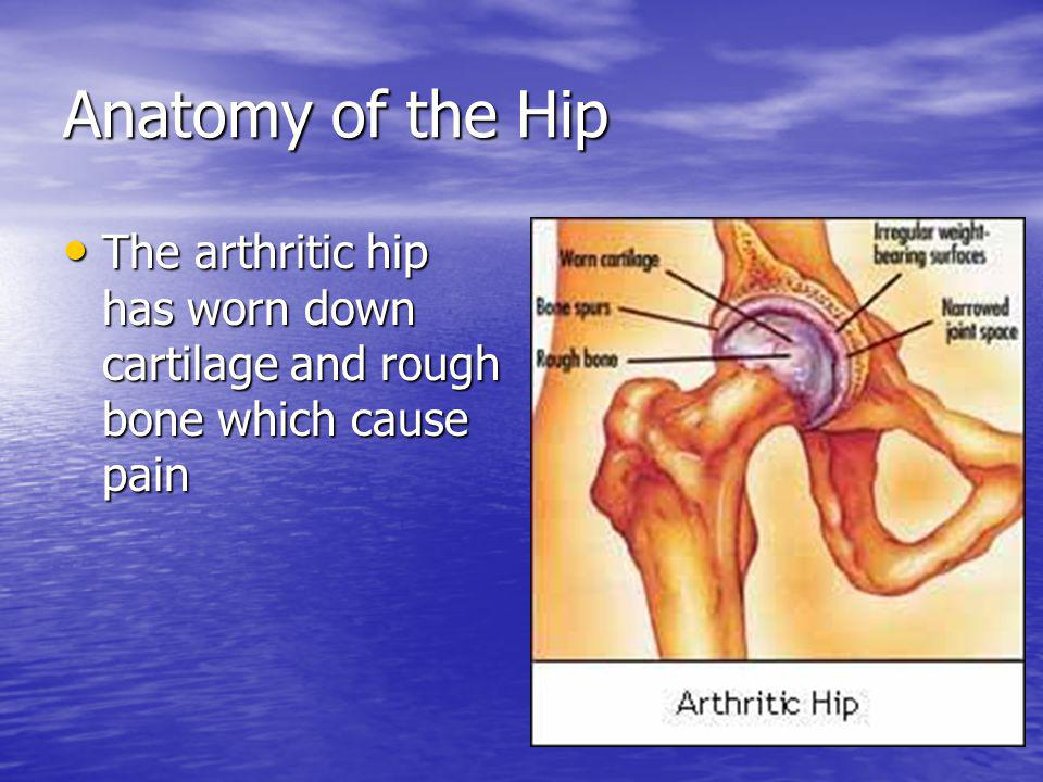 Anatomy of the Hip The arthritic hip has worn down cartilage and rough bone which cause pain