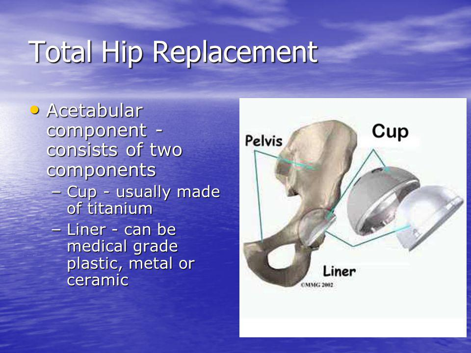 Total Hip Replacement Acetabular component - consists of two components. Cup - usually made of titanium.