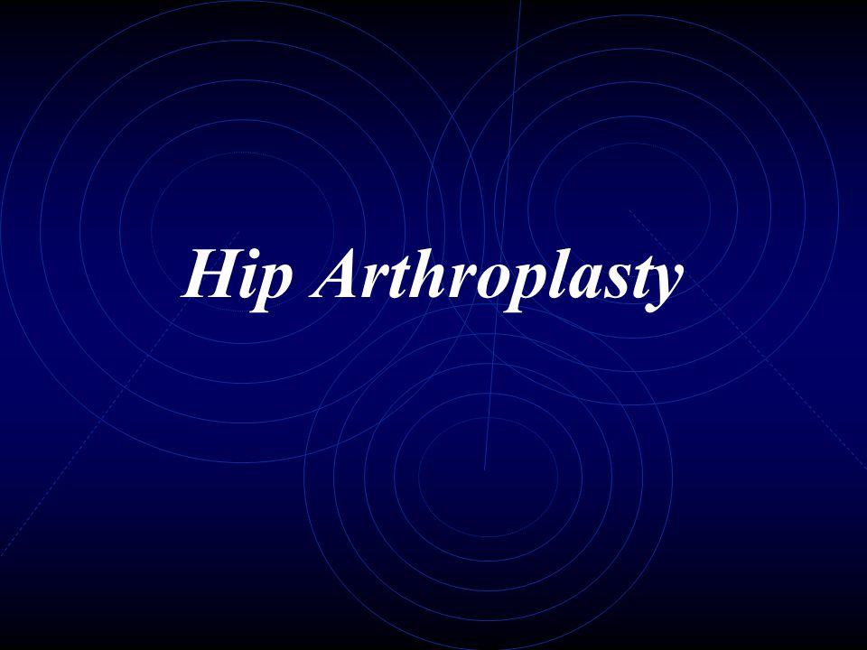 Hip Arthroplasty