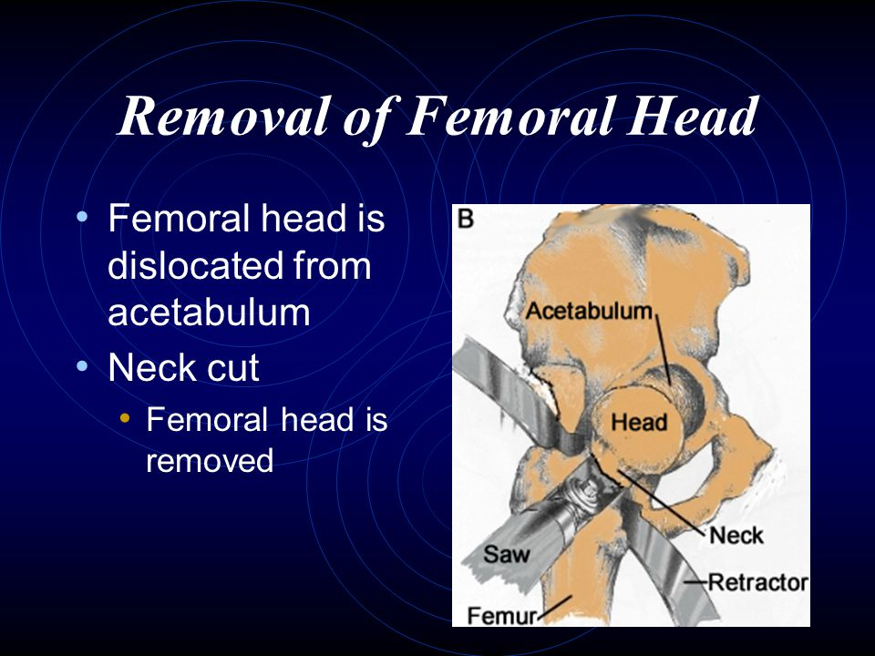 Removal of Femoral Head