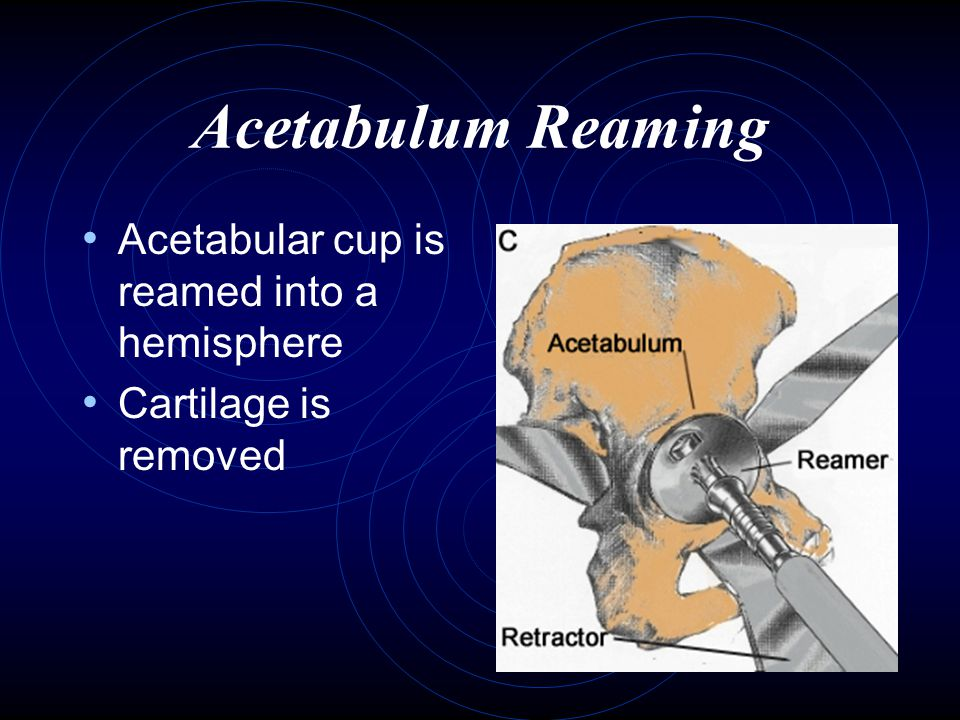 Acetabulum Reaming Acetabular cup is reamed into a hemisphere