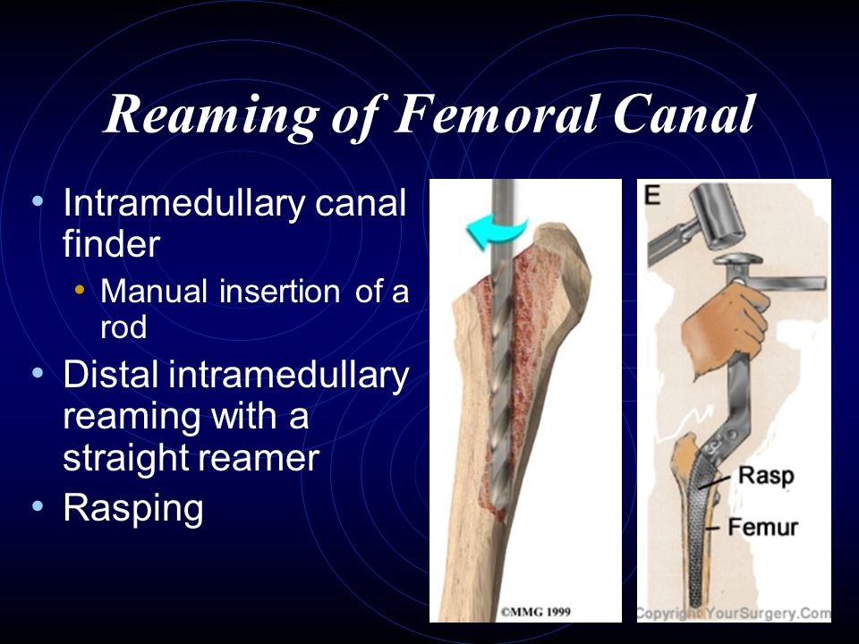 Reaming of Femoral Canal