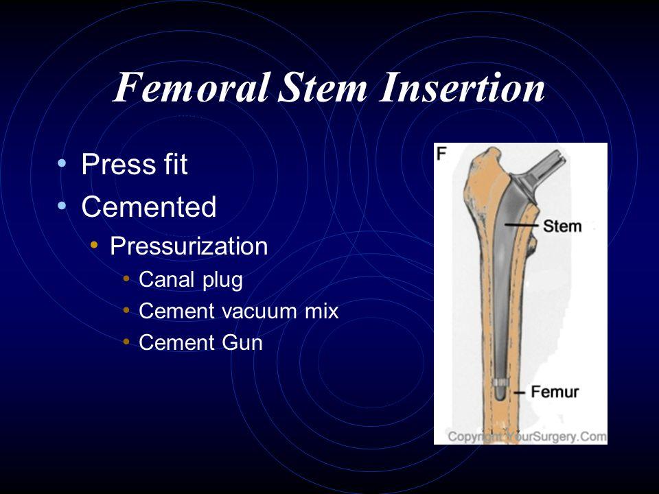 Femoral Stem Insertion