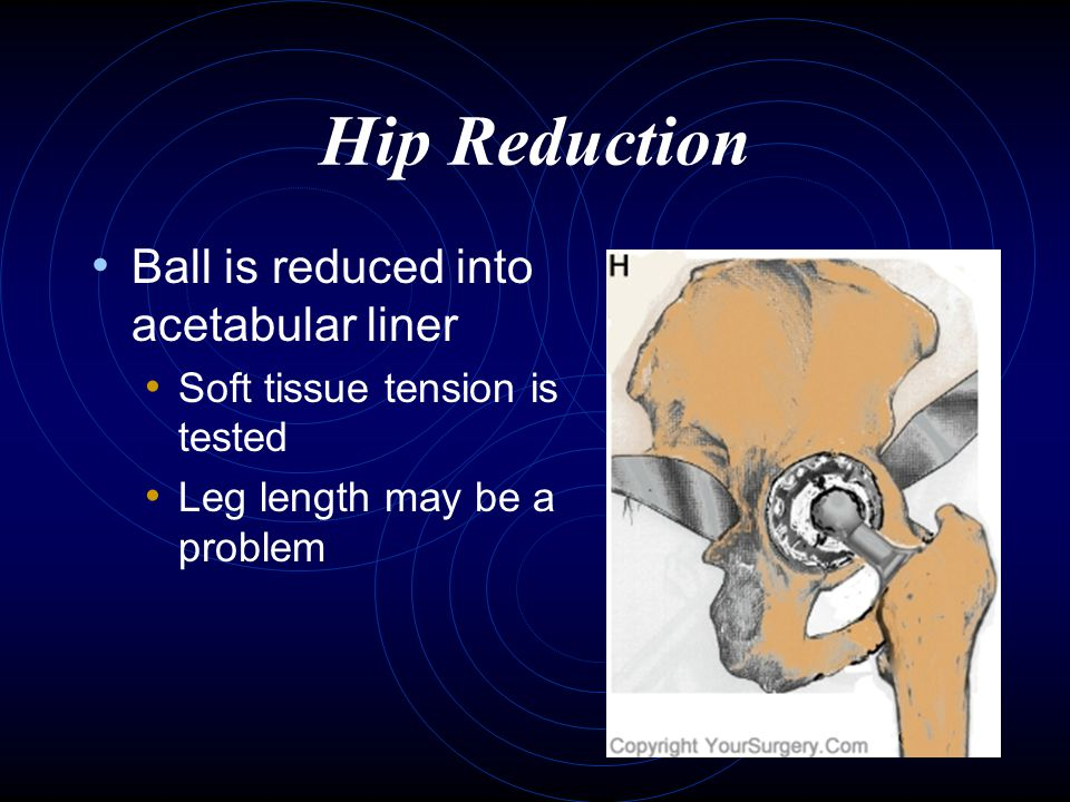 Hip Reduction Ball is reduced into acetabular liner
