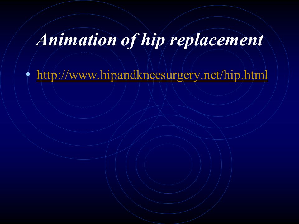 Animation of hip replacement
