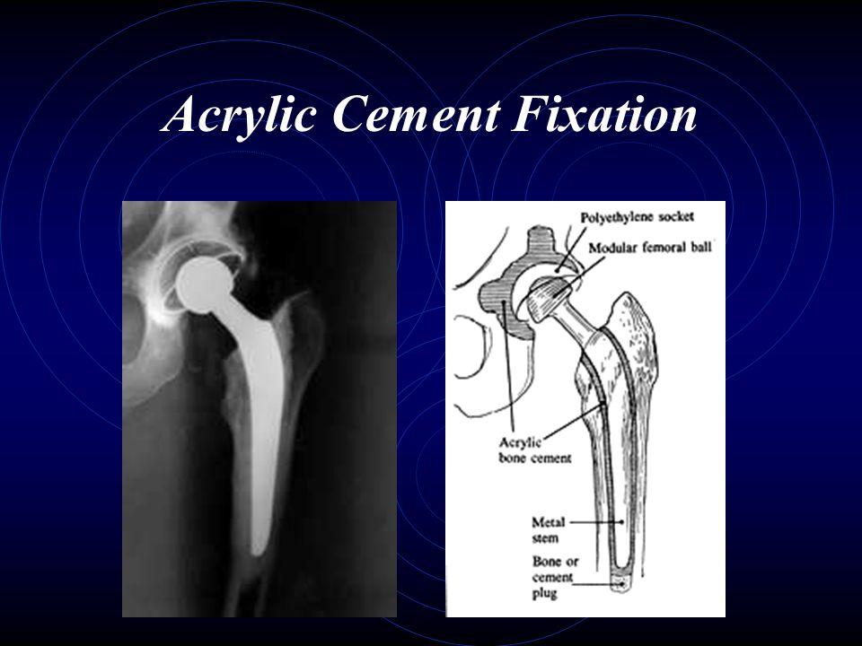 Acrylic Cement Fixation