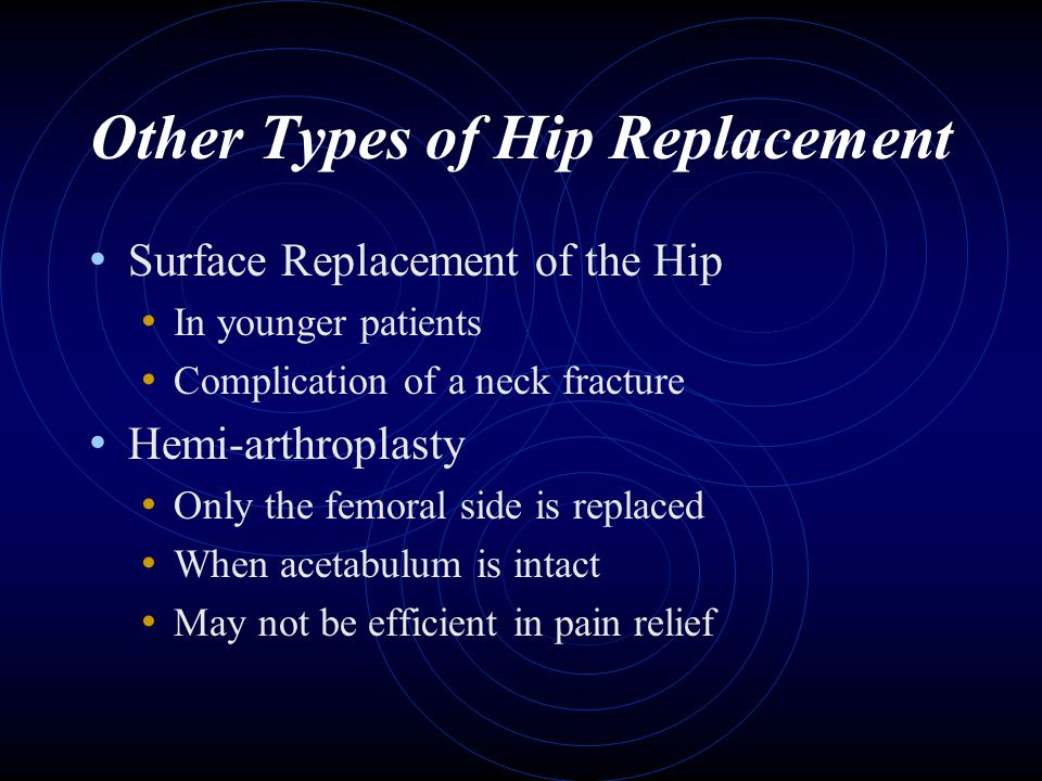 Other Types of Hip Replacement