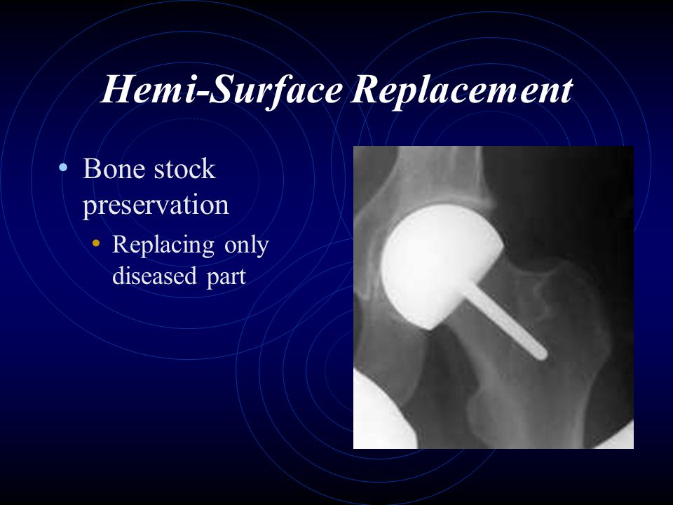 Hemi-Surface Replacement