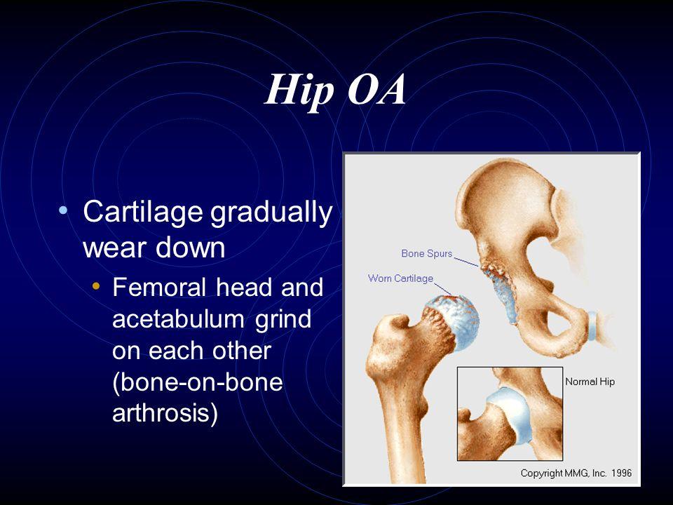 Hip OA Cartilage gradually wear down