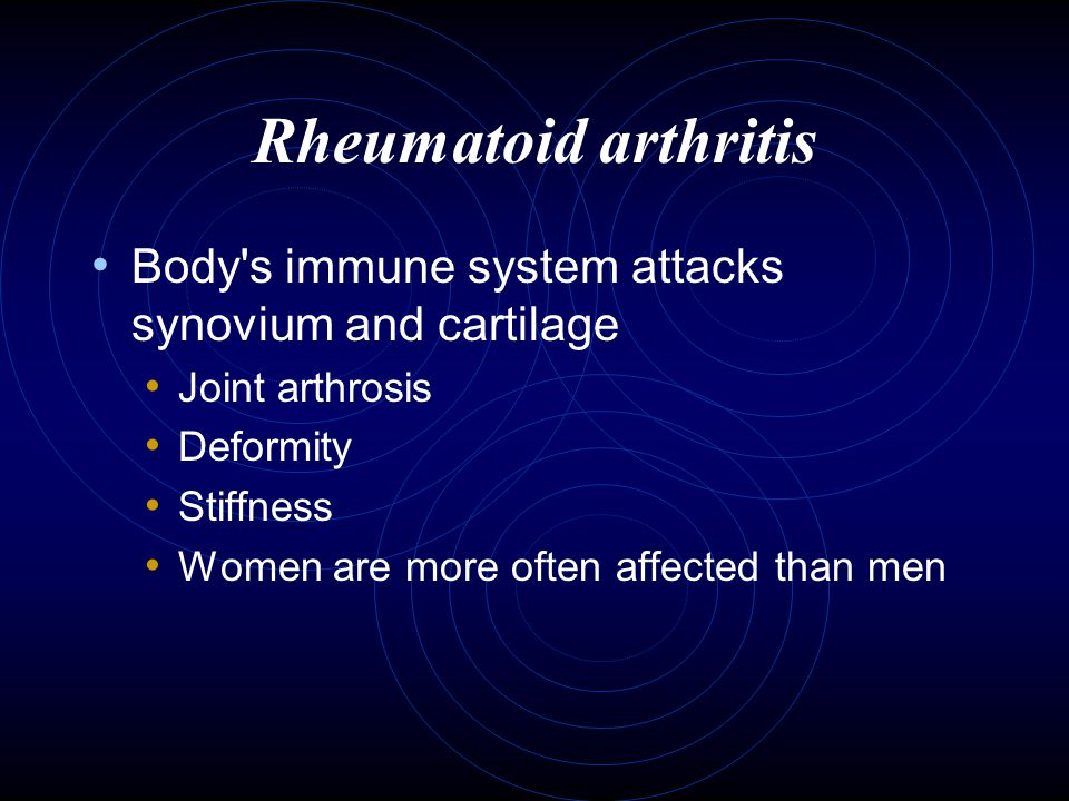 Rheumatoid arthritis Body s immune system attacks synovium and cartilage. Joint arthrosis. Deformity.