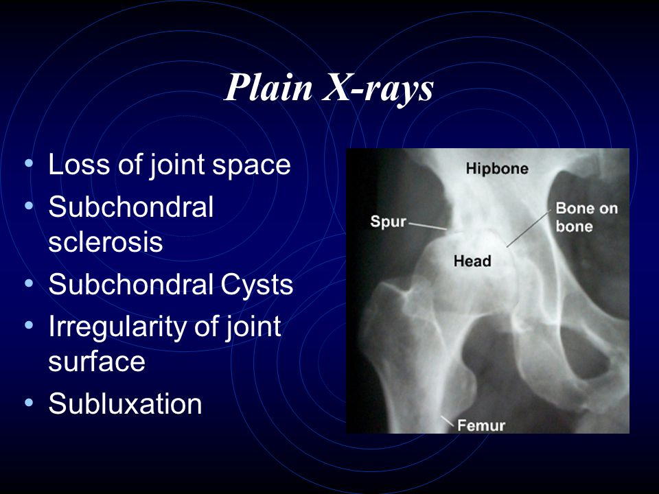 Plain X-rays Loss of joint space Subchondral sclerosis