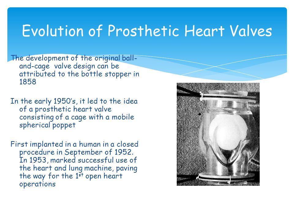 Evolution of Prosthetic Heart Valves