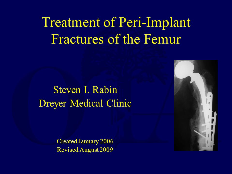 Treatment of Peri-Implant Fractures of the Femur