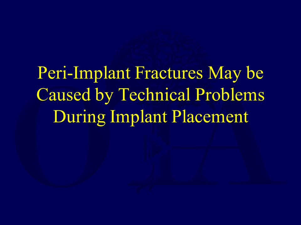 Peri-Implant Fractures May be Caused by Technical Problems During Implant Placement