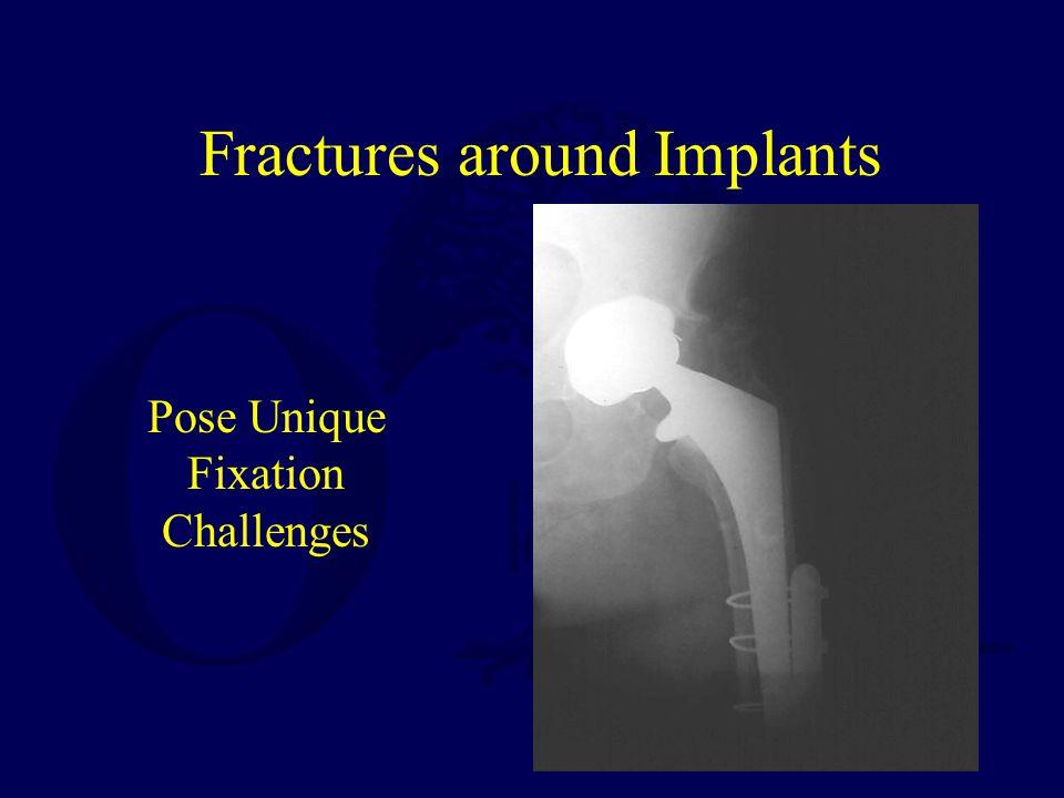 Fractures around Implants