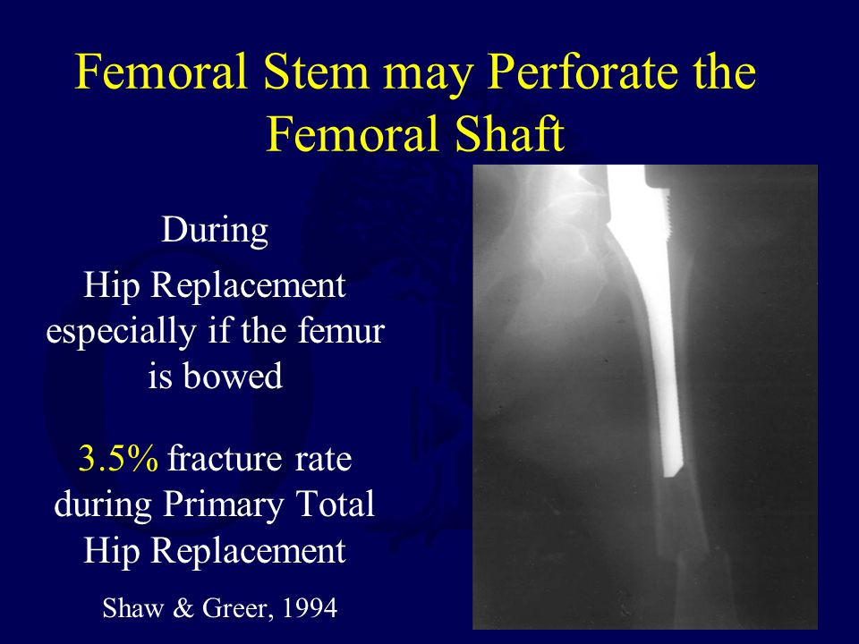 Femoral Stem may Perforate the Femoral Shaft