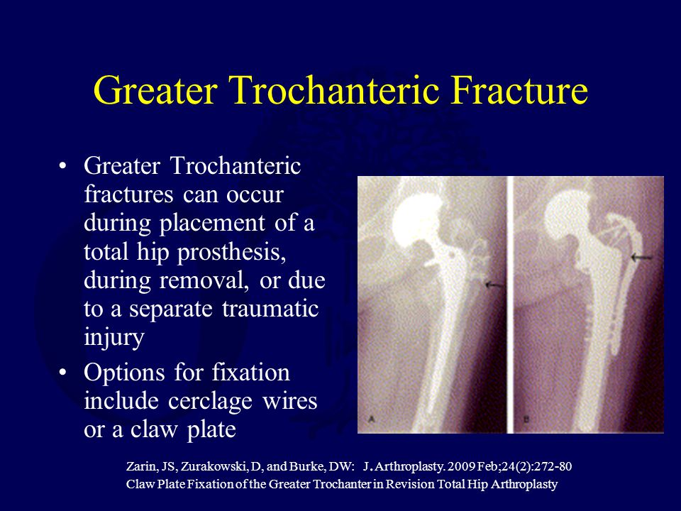 Greater Trochanteric Fracture