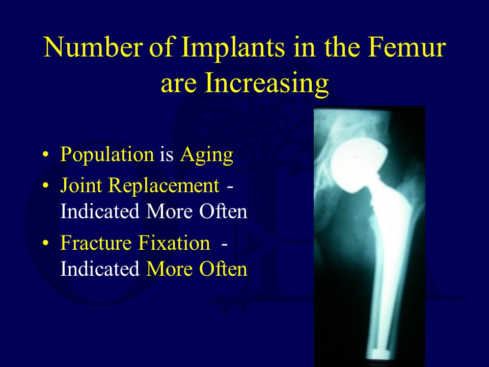 Number of Implants in the Femur are Increasing