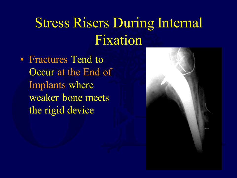 Stress Risers During Internal Fixation