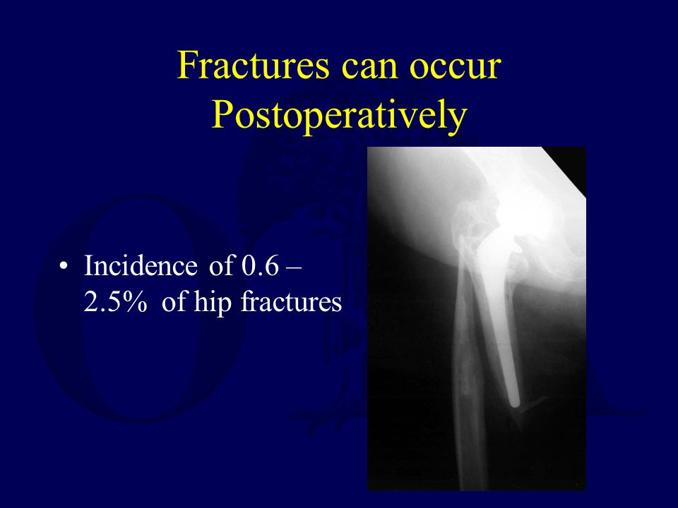 Fractures can occur Postoperatively