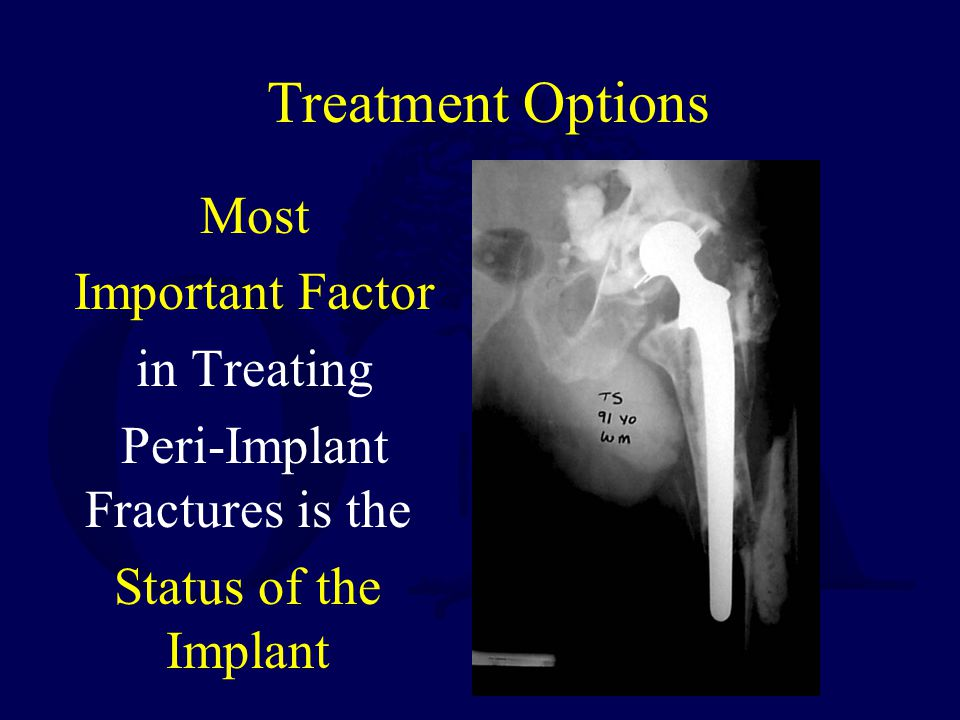 Peri-Implant Fractures is the