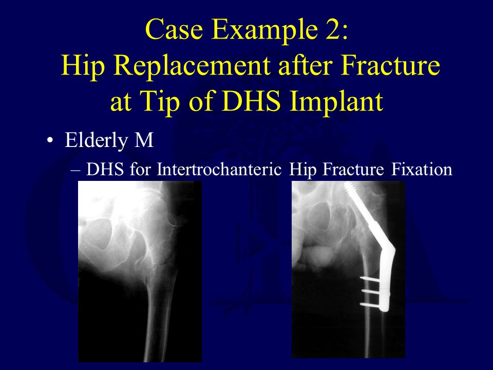 Case Example 2: Hip Replacement after Fracture at Tip of DHS Implant
