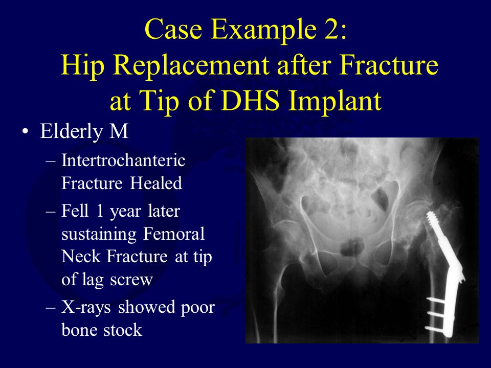 broken hip prothesis A hip fracture is another term for a broken hip it is a common  in a  hemiarthroplasty, only the head of the femur is replaced by a prosthesis.