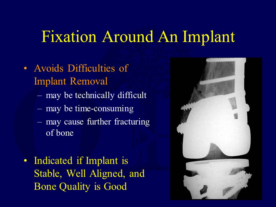 Fixation Around An Implant
