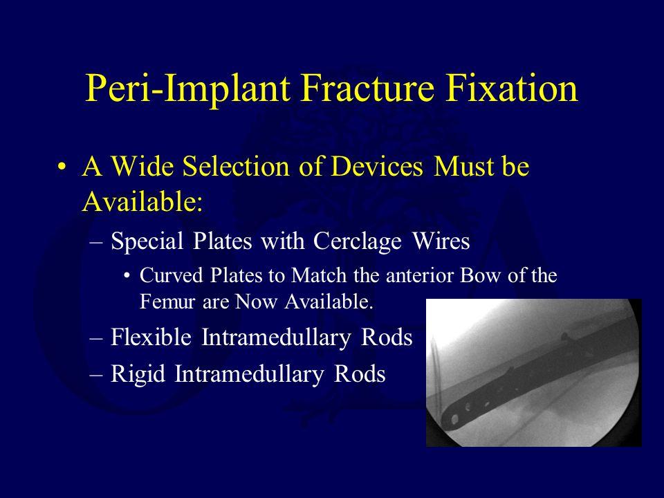 Peri-Implant Fracture Fixation