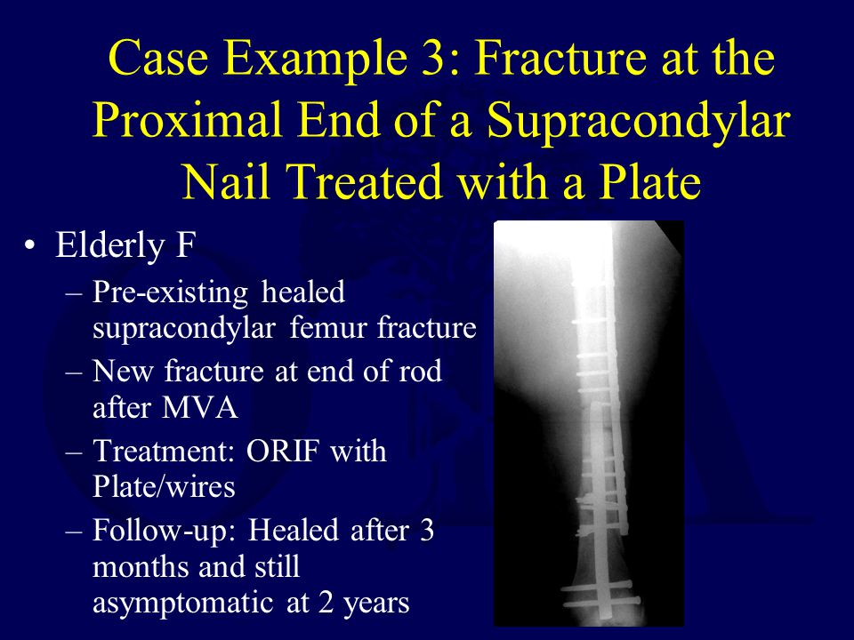 Case Example 3: Fracture at the Proximal End of a Supracondylar Nail Treated with a Plate