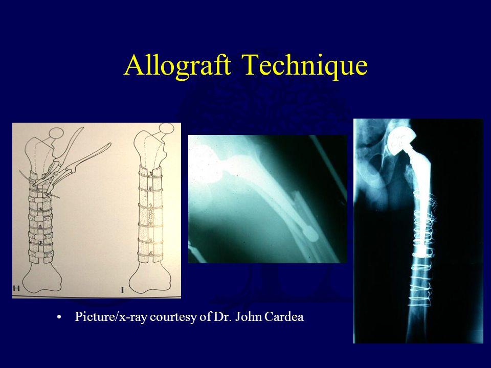 Allograft Technique Picture/x-ray courtesy of Dr. John Cardea