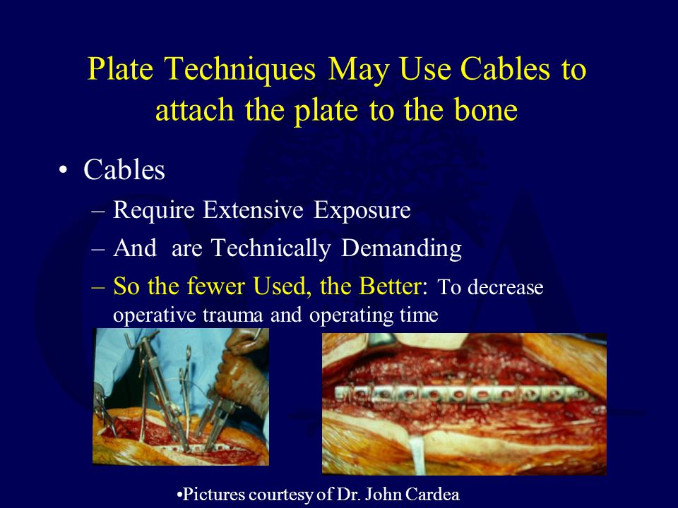 Plate Techniques May Use Cables to attach the plate to the bone