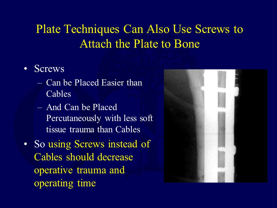 Plate Techniques Can Also Use Screws to Attach the Plate to Bone