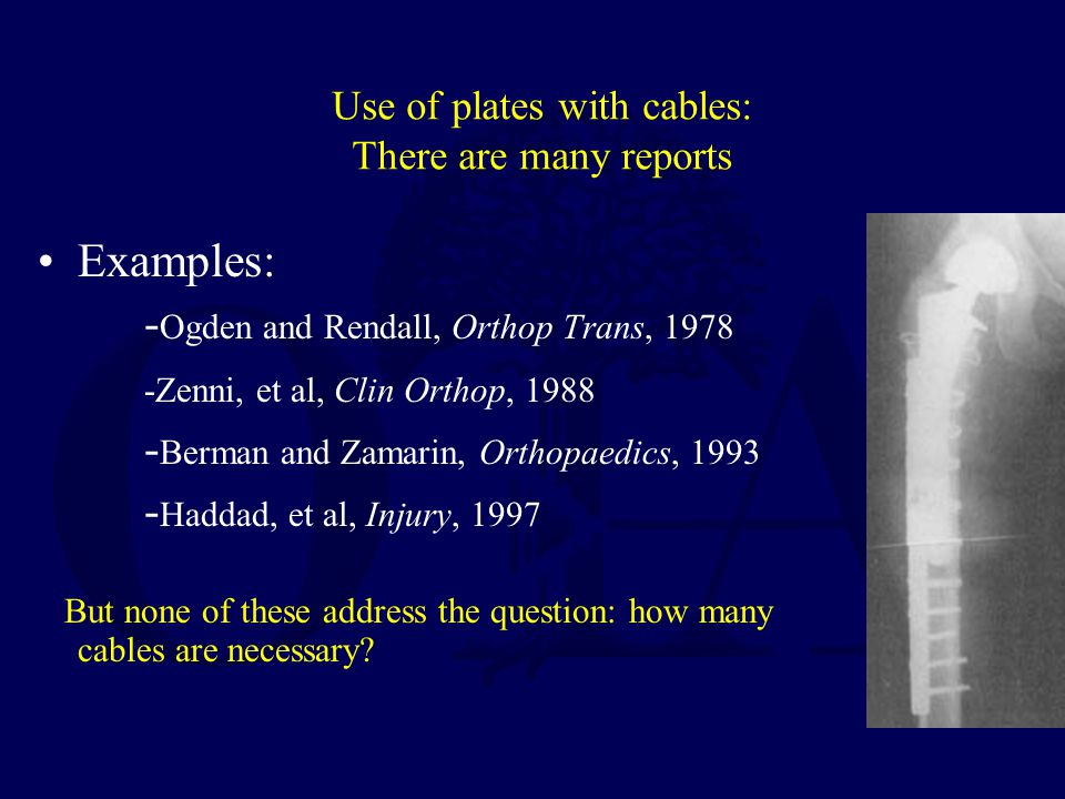 Use of plates with cables: There are many reports