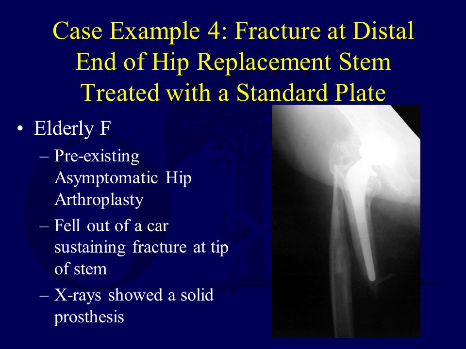 Case Example 4: Fracture at Distal End of Hip Replacement Stem Treated with a Standard Plate