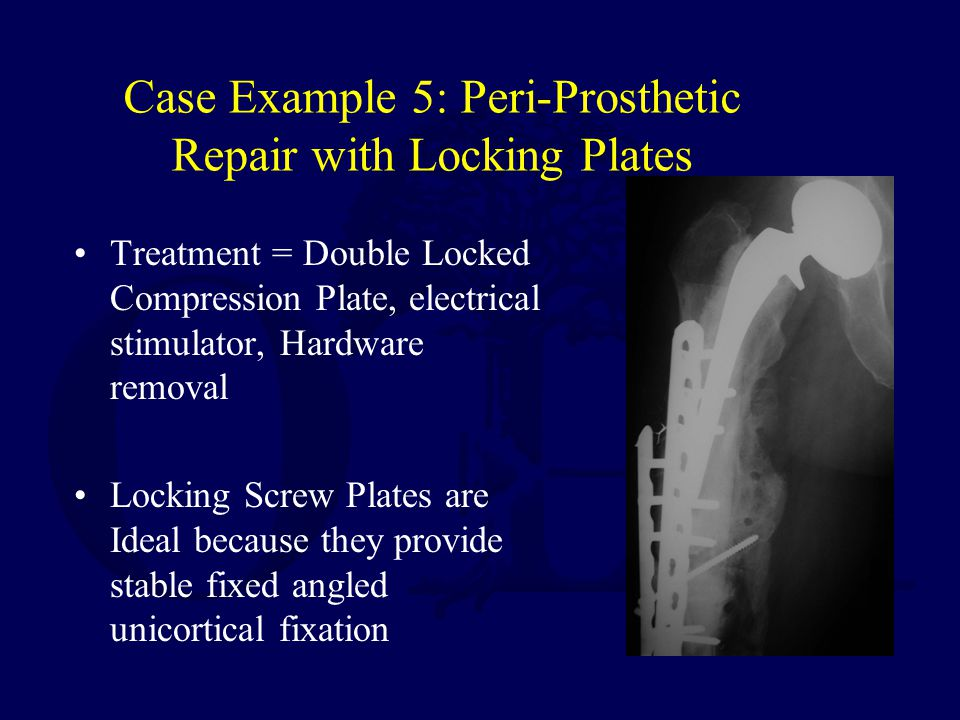 Case Example 5: Peri-Prosthetic Repair with Locking Plates