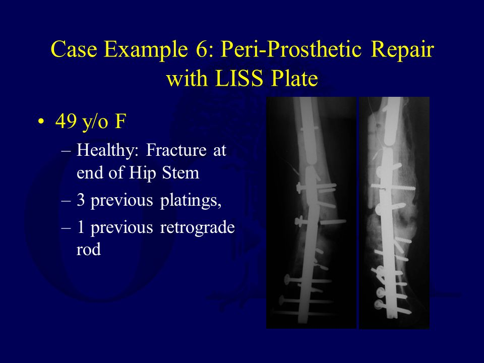 Case Example 6: Peri-Prosthetic Repair with LISS Plate