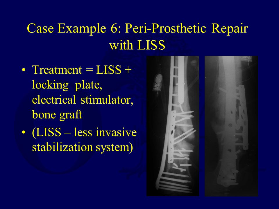 Case Example 6: Peri-Prosthetic Repair with LISS