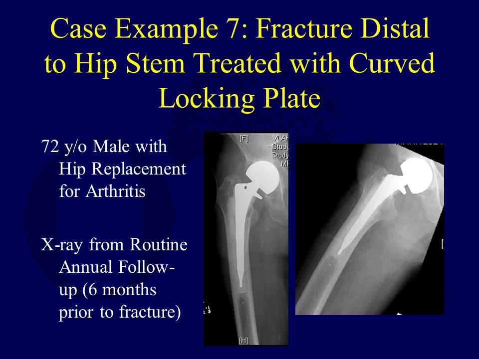 Case Example 7: Fracture Distal to Hip Stem Treated with Curved Locking Plate