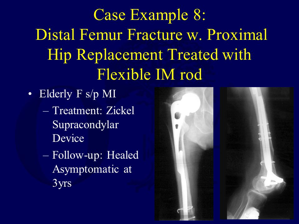 Case Example 8: Distal Femur Fracture w