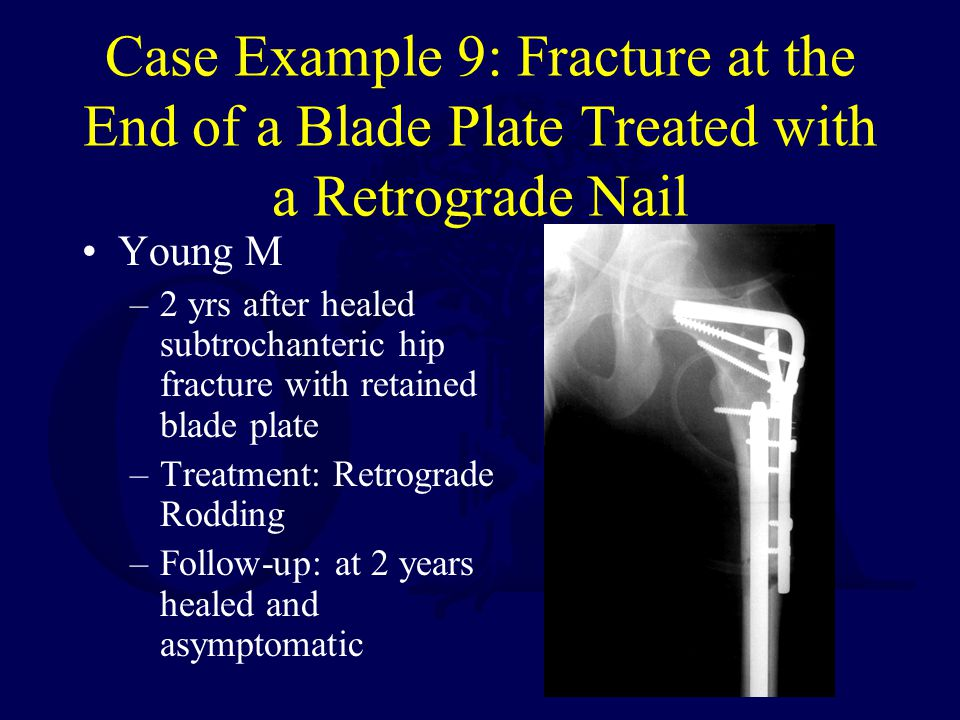 Case Example 9: Fracture at the End of a Blade Plate Treated with a Retrograde Nail
