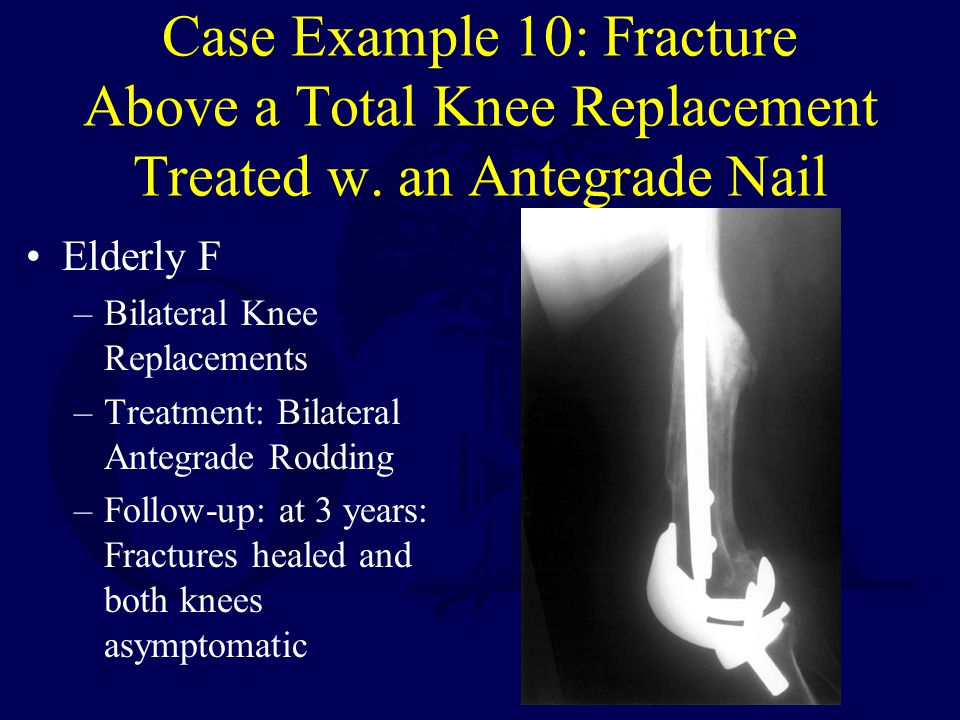 Case Example 10: Fracture Above a Total Knee Replacement Treated w