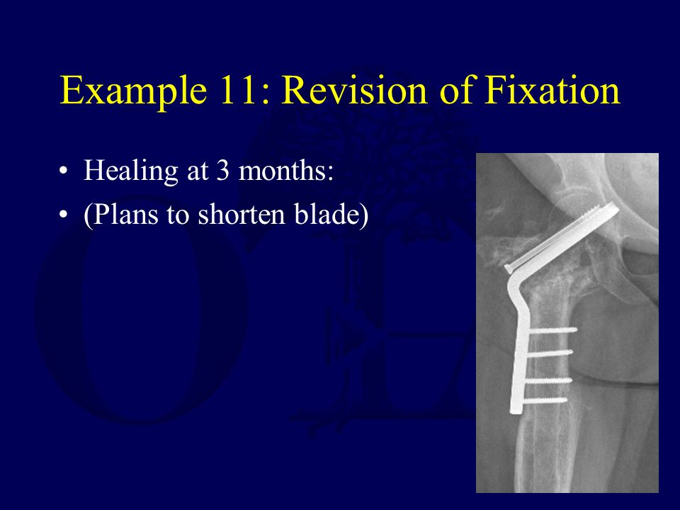 Example 11: Revision of Fixation